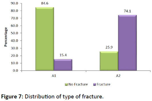 bone-Distribution-type-fracture