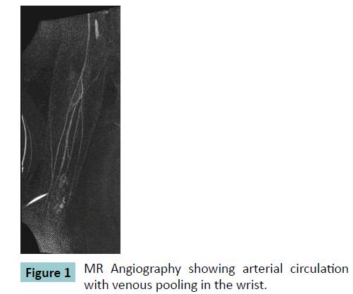 bone-MR-Angiography